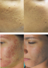 skinpen-before-after